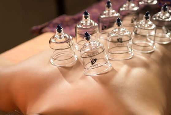 Traditional Cupping in Melbourne